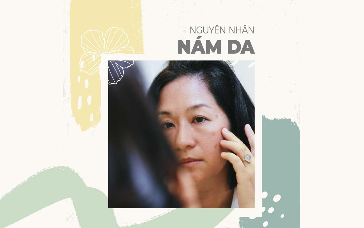 nguyen-nhan-nam-da
