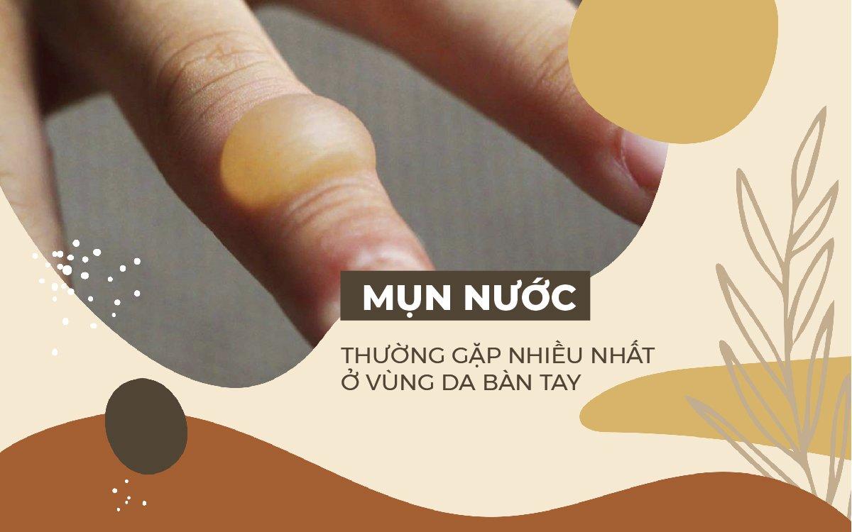cach-chua-mun-nuoc