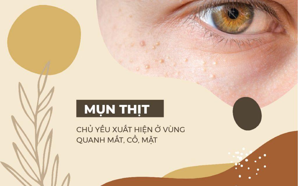 cach-chua-mun-thit
