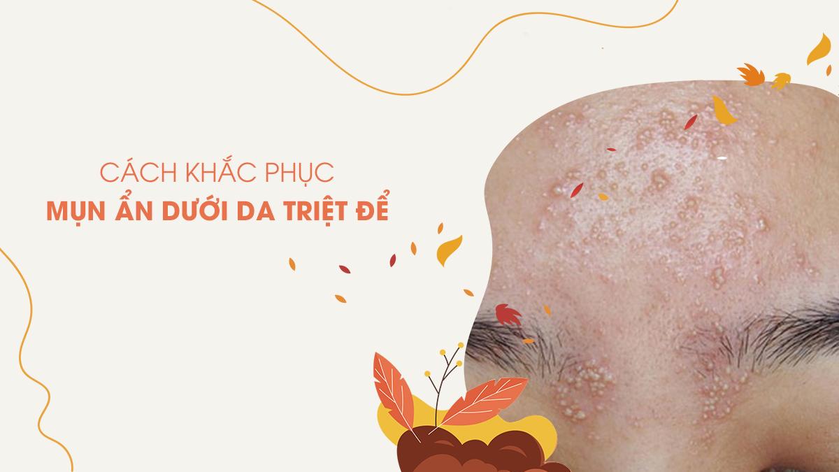 cach-khac-phuc-mun-an-duoi-da