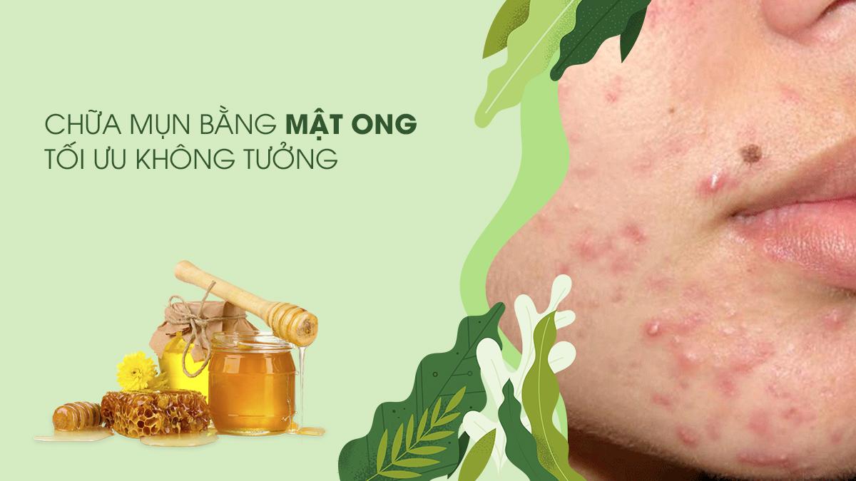 chua-mun-bang-mat-ong