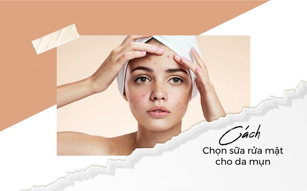 Cách chọn sửa rửa mặt cho da mụn