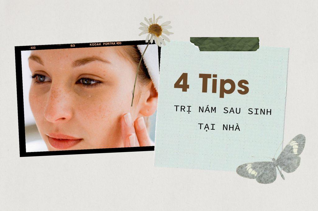 4-tips-tri-nam-sau-sinh-tai-nha