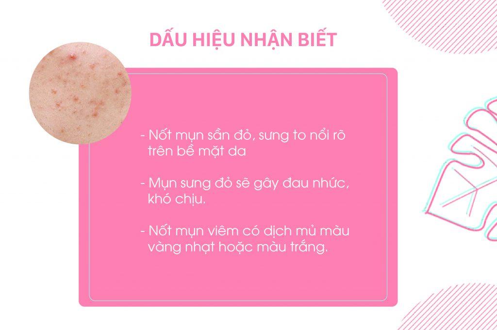 dau-hieu-nhan-biet-mun-viem