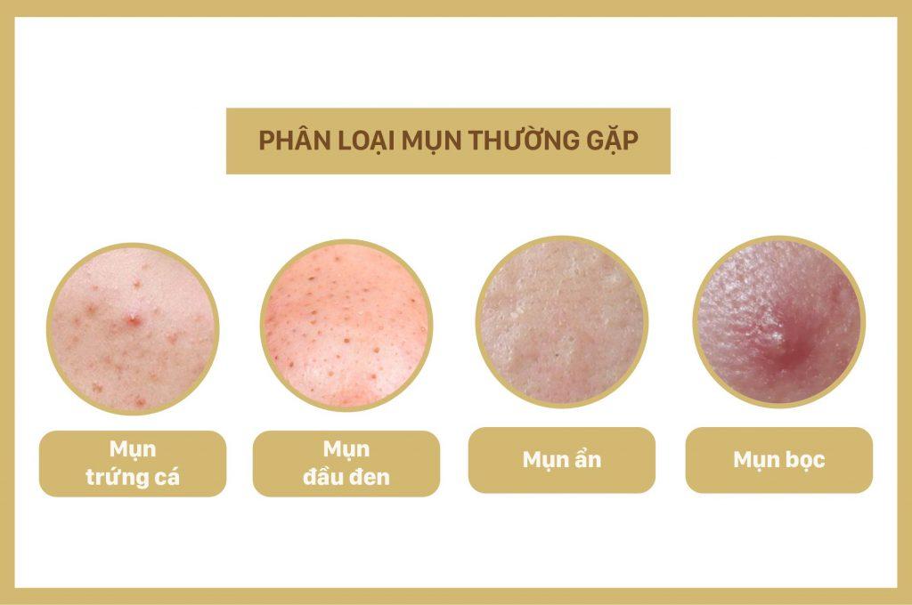 phan-loai-mun-thuong-gap