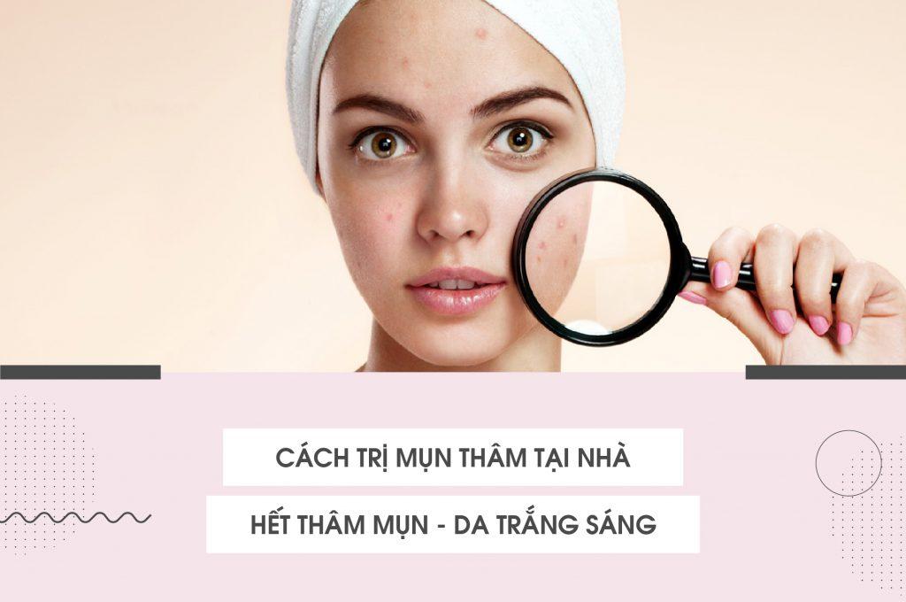 cach-tri-mun-tham-tai-nha-het-tham-mun-da-trang-sang