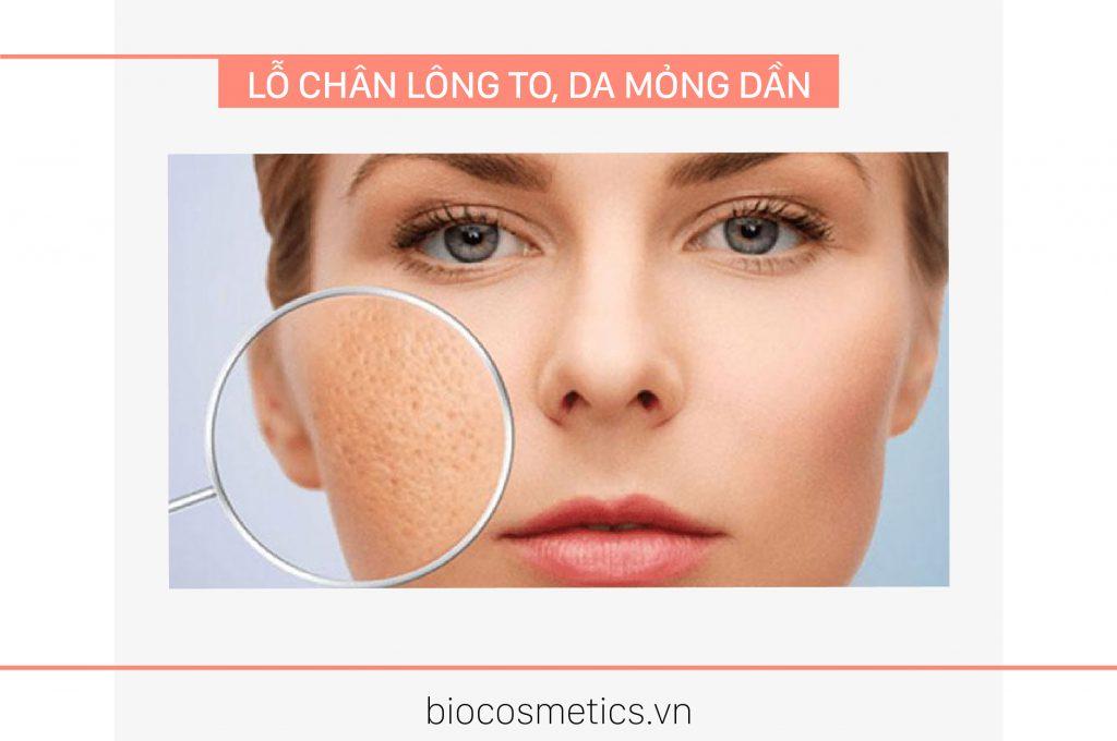 lo-chan-long-to-da-mong-dan