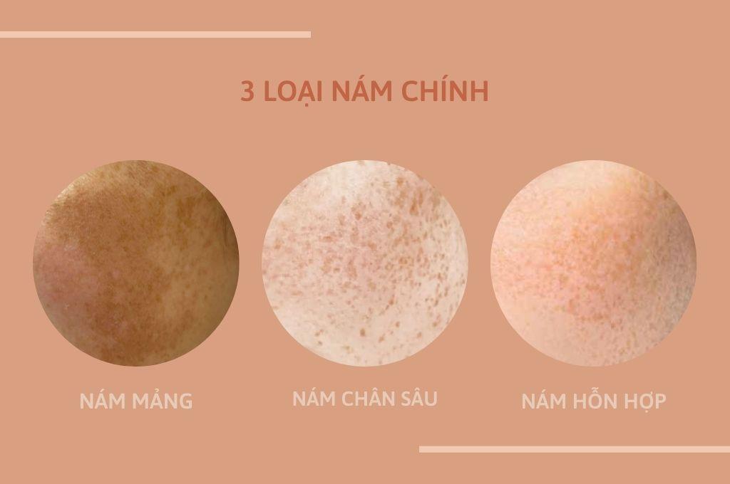 3-loai-nam-chinh